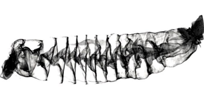 CT scan of a spiral intestine