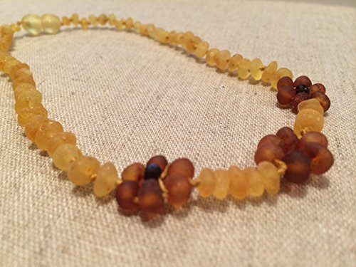 Baltic Amber 15 Inch Raw Lemon Flower Necklace. Teen child some adults. Anti-inflammatory, cramps, growing pains, fever, body ache, head ache Certificated Jewelry Screw Clasp