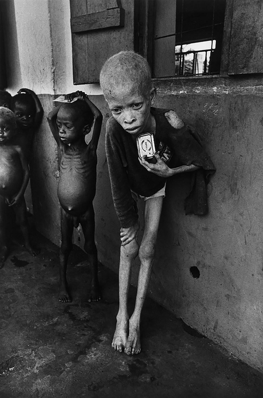 """""""Niño albino"""" (Don McCullin, Nigeria, 1969)"""