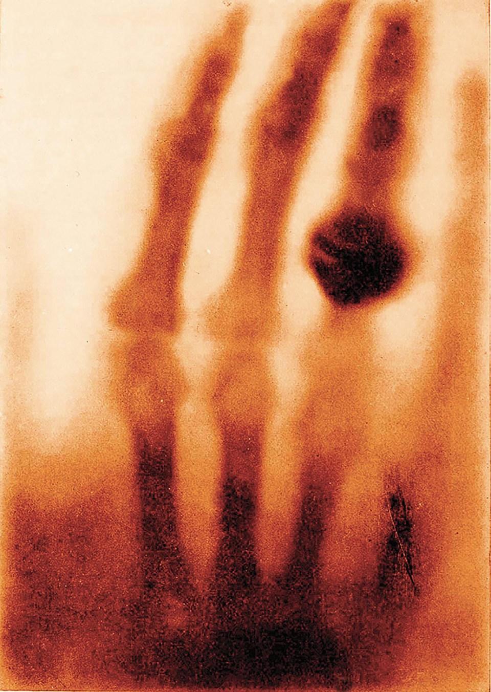 """La mano de la Sra. Wilhelm Röntgen"" (Wilhelm Conrad Röntgen, Alemania, 1895)"