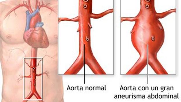 Detalle de una aorta saludable y otra dilatada
