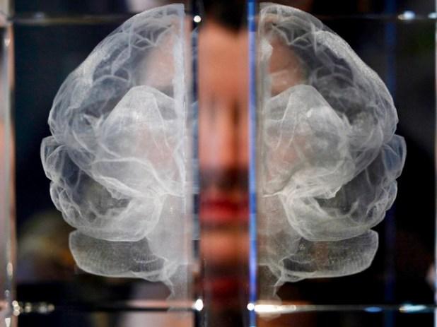 El mal de Alzheimeravanzaen un ambiente cerebral de inflamación.