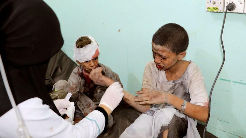 Estos niños resultaron heridos luego de un bombardeo por parte de Arabia Saudita. (REUTERS/Naif Rahma)