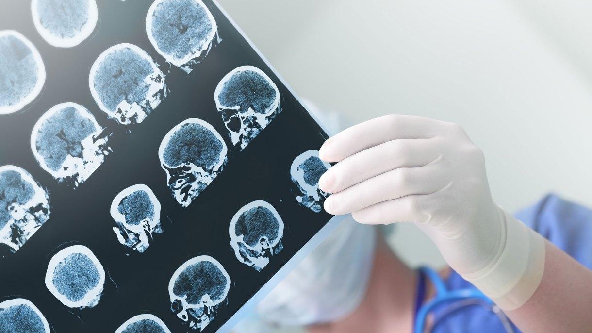 La nueva droga ofrece una esperanza para el deterioro asociado a la vejez, el Alzheimer y la depresión.(Getty)