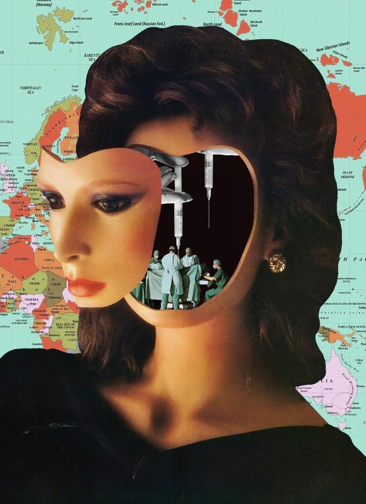 Los levantamientos faciales son un gran negocio en determinados sectores de la industria viajera. Ilustración: Blake Kirpes