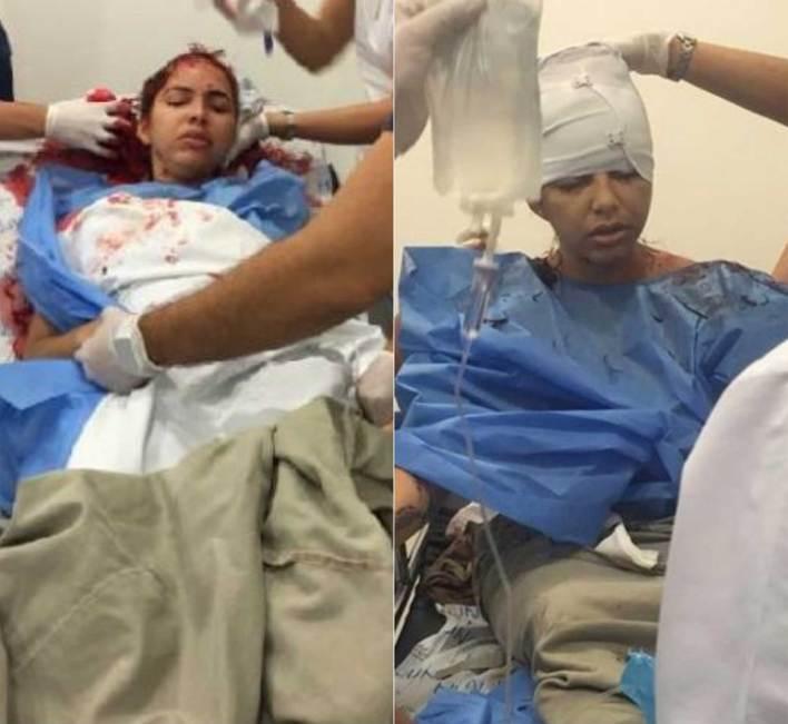 La mujer fue trasladada al hospital Universidad del Norte, donde ha sido sometida a varias cirugías.