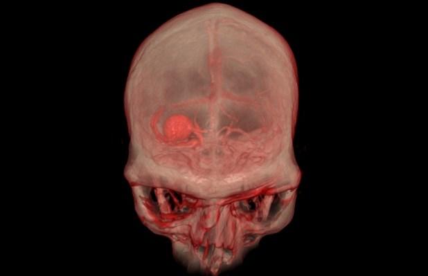 Imagen deRV que se emplean en la preparaciónde una cirugía.(Universidad de Stanford)