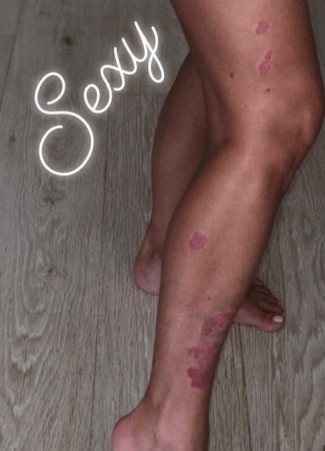 Kim Kardashian utiliza su Instagram para compartir consejos y tratamientos contra la psoriasis (Foto: Twitter @kimkardashian)