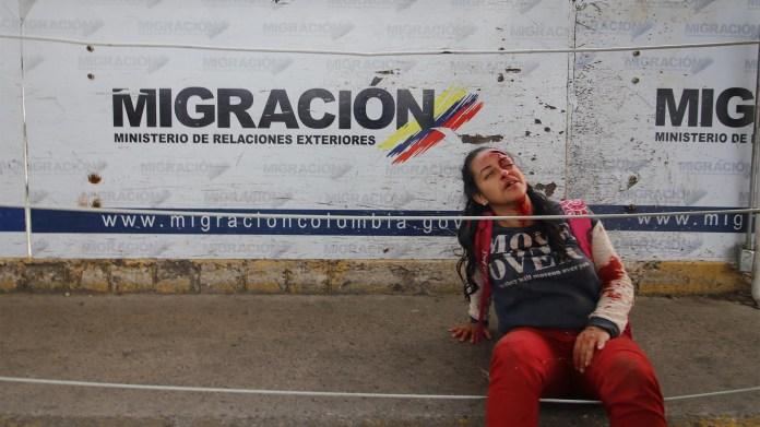 Una mujer se sienta después de ser lesionada cuando dos vehículos blindados venezolanos salieron del lado venezolano del Puente Internacional Simón Bolívar a Colombia, derribando una valla de seguridad en Cucuta (AFP)