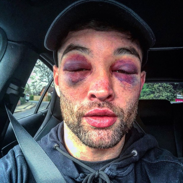 Así quedó el rostro del boxeador británico Scott Fitzgerald tras su pelea ante Anthony Fowler (Twitter: @EddieHearn)