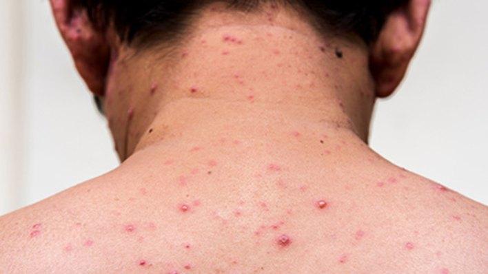 La OMS estableció tres hitos en el camino a la erradicación del sarampión que debían cumplirse antes de 2015 (Foto: Archivo)