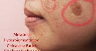 Melasama, Ayurveda, hyperpigmentation.