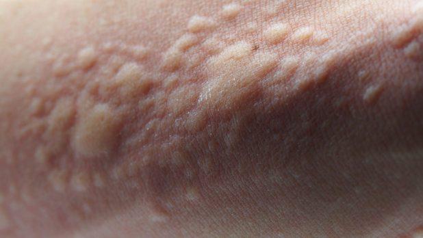 hives treatment remedies