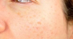 age spots liver spots woman