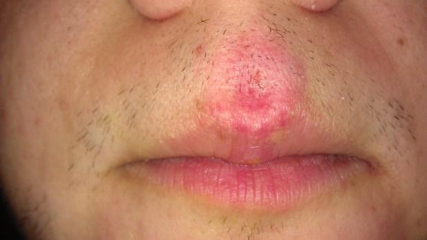 Hard Lump Inside My Upper Lip | Ownerlip co