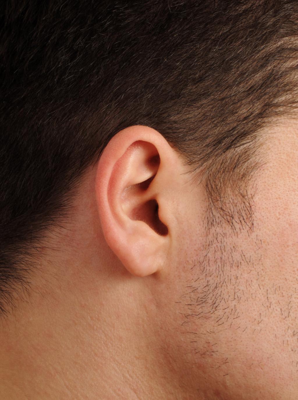 Lump Jaw Under Bone Ear Behind