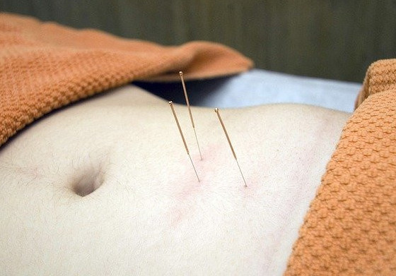 chinese acupuncture