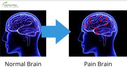 neuroplastic pain medication