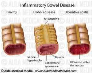 Alila Medical Media | Inflammatory bowel disease, labeled