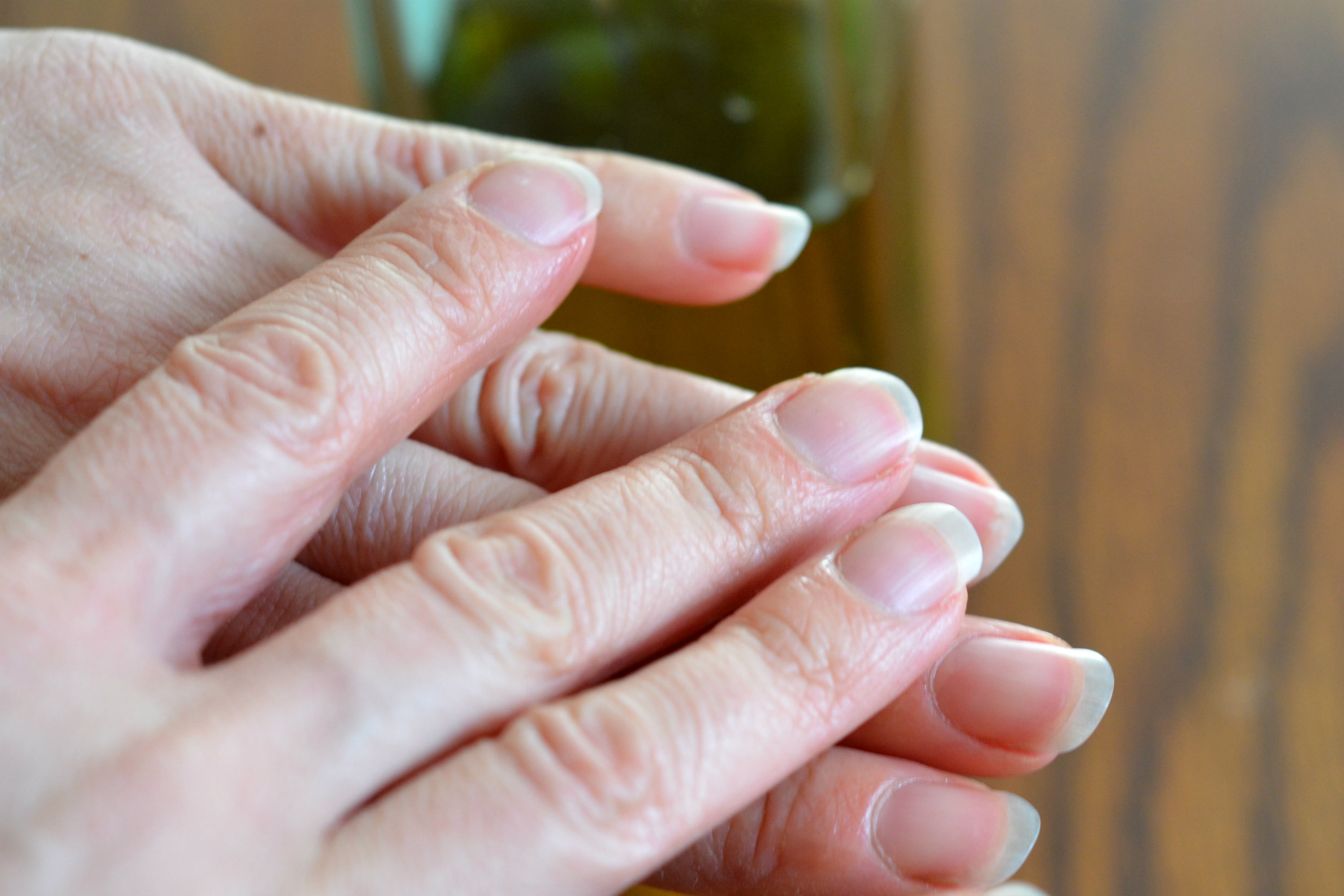 How To Heal A Damaged Cuticle