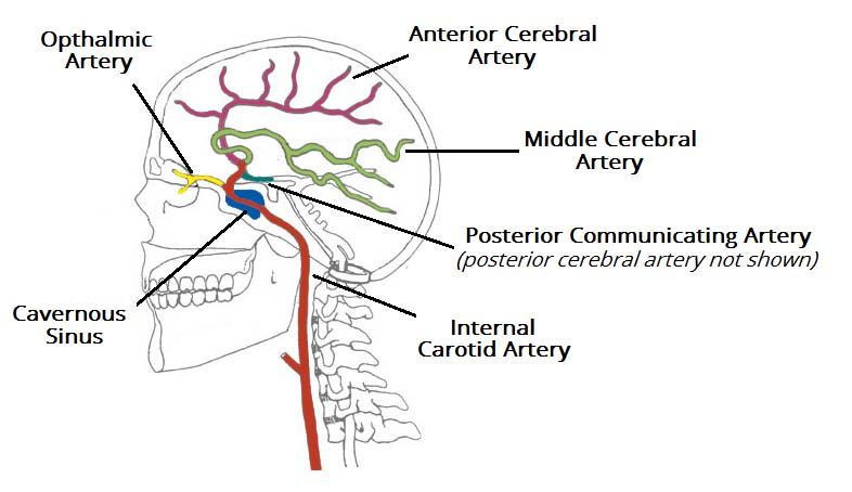 Arterial Supply to the Brain - Carotid - Vertebral ...
