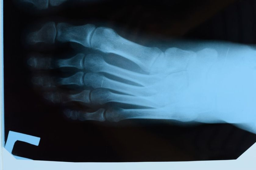 A picture of an x-ray of a foot