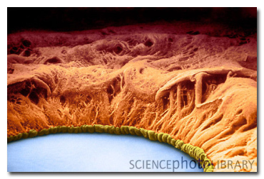 11 Everyday Things That Are Terrifying Under A Microscope