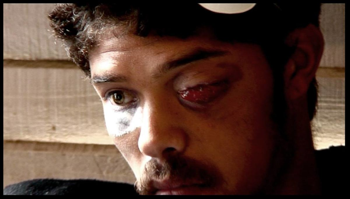 This is how Helen Zille helps the citizens of Hangberg. Delon Egypt, 22 year old resident of Hangberg, Hout Bay, had his left eye shot out by the police whilst on his way to buy bread