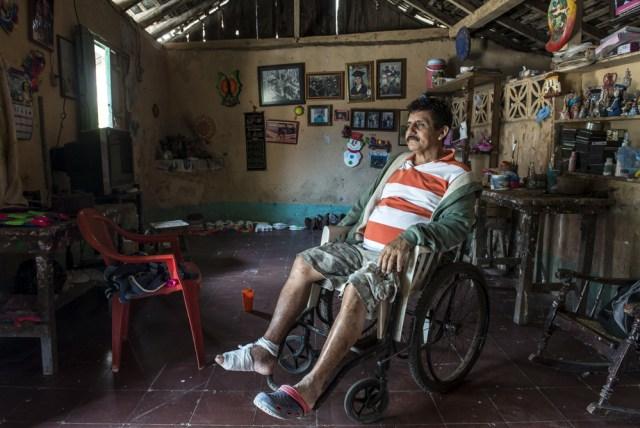 Alberto Bracamontes, ex- Cachorro del BLI Beatos López, padece hoy de diabetes y hace poco le amputaron 2 dedos del pie. Foto: Óscar Navarrete / La Prensa.