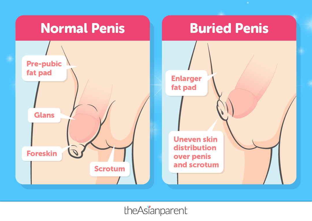 Buried Penis Syndrome In Baby Boys: What You Need To Know