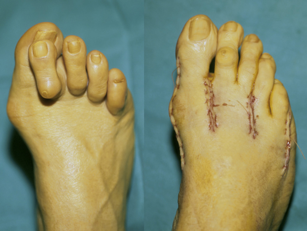 hammer toes, claw toes, mallet toes, curly toes & webbed toes, Skeleton
