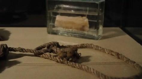 Evidencia judicial. La soga empleada en un suicidio, y una muestra conservada de la piel del cuello donde dejó su marca. -