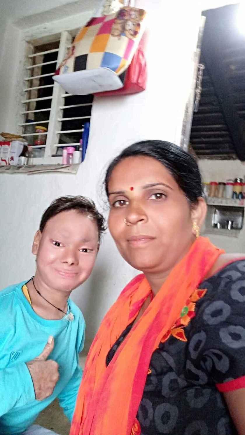 Shalini posa sonriente junto a su madre, Devkumar, en su hogar de Nowgong.