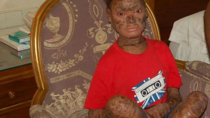 Shalini durante su estancia en la Costa del Sol, cuando apenas había iniciado el tratamiento.