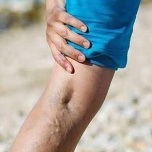 تعرف على أفضل طرق لعلاج دوالي الساقين !