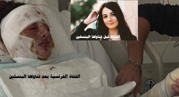 فتاة فرنسية احترق لسانها وقصبتها وعضوها التناسلى بسبب البنسلين