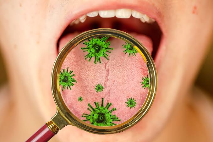 Dry and Itchy Tongue are symptoms of New Covid-19
