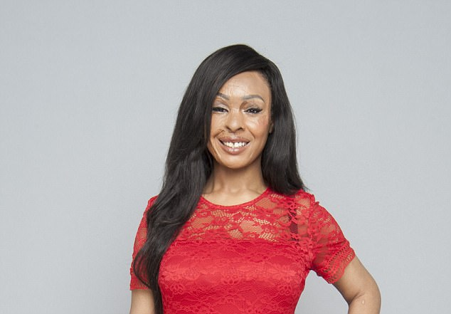 Naomi Oni's Acid Attack Story – My Thoughts