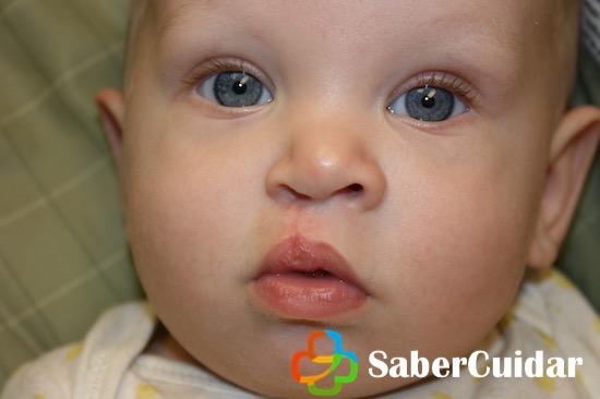 Resultado de una cirugía de labio leporino