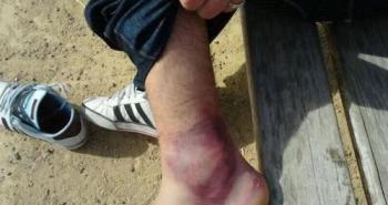 tratamientos fracturas de tobillo