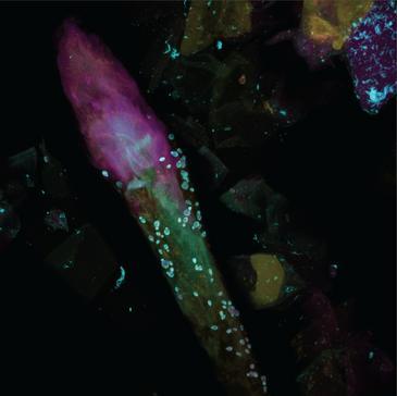 En la imagen se pueden observar alguno de los tipos de hongos analizados. / Alex Valm, NHGRI