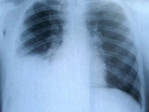 El cáncer de pulmón podría tratarse con este método in vitro
