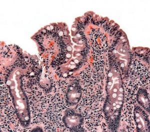 Los familiares de pacientes celiacos podrían tener la enfermedad