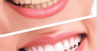 4 NATURAL TEETH WHITENING OPTIONS THAT WORK