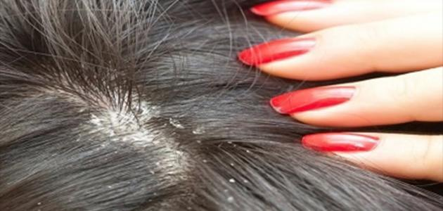 HOME REMEDIES FOR DANDRUFF: HOW TO REMOVE DANDRUFF