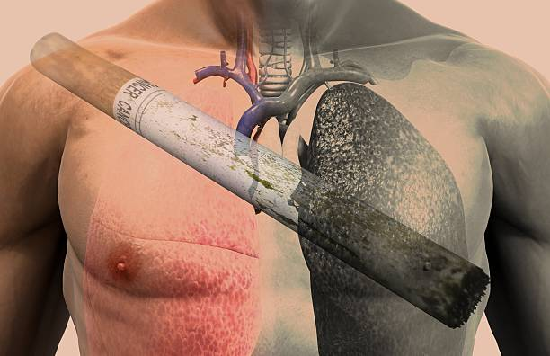 Everything You Need to Know About Lung Cancer In Hindi