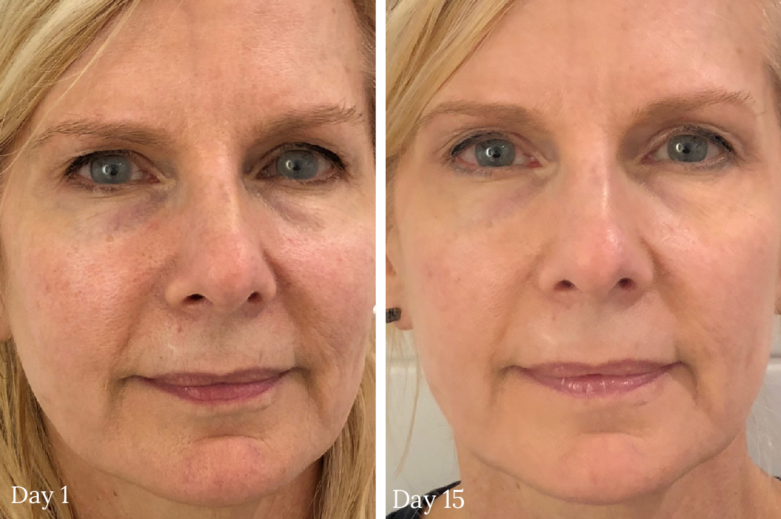 Sabrina Collagen Rx Plus anti-aging collagen cream before and after pictures
