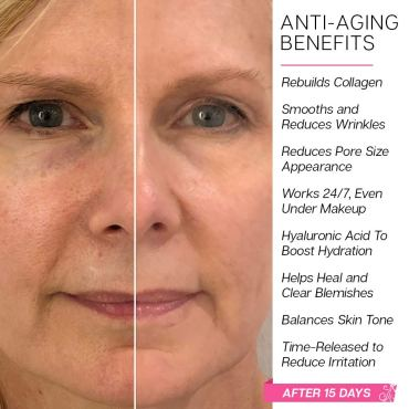Sabrina Collagen Rx Plus Before and After Pictures