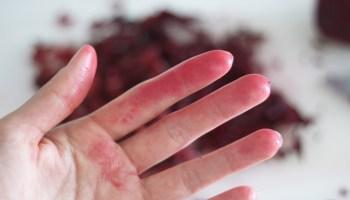 du colorant alimentaire sur mes mains comment lenlever - Tache Colorant Alimentaire