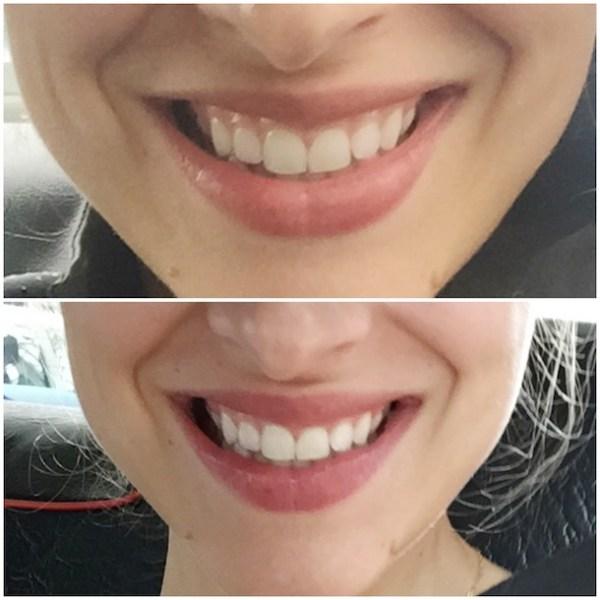 smile-center